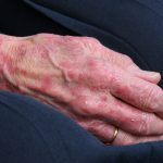 Eczema Siegel Dermatology Medical treatments